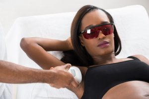 56278433 - therapist removing hair of young african woman's armpit with epilator My laser hair removal experience: What you need to know!